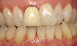 Before a new dental crown