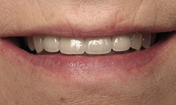 After porcelain veneers in Ft. Collins