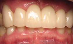 Replacing teeth with dental implants