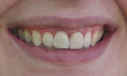 After a dental implant and porcelain veneer