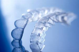 set of clear aligners