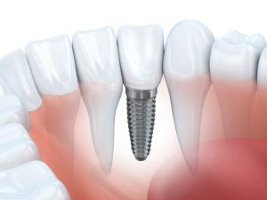 dental implants in fort collins, co