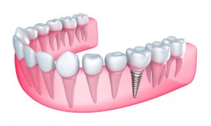 Dental implants in Ft. Collins are the perfect gift for someone with tooth loss.